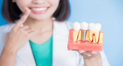 В какой стране лучше всего делать зубные импланты?