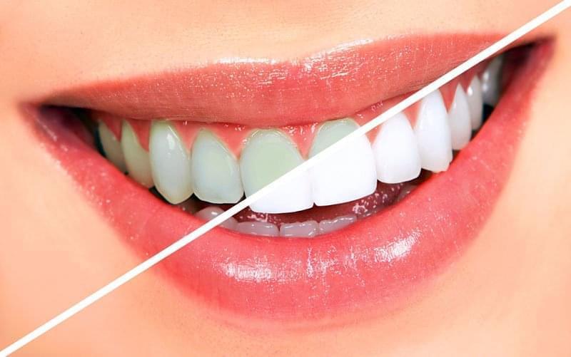 Отбеливание зубов в Армении